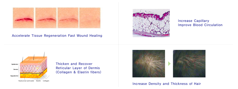 PDRN Skin Rejuvenation