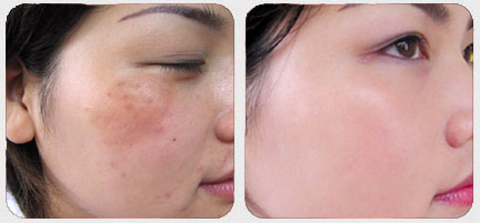 melanoma treatment before after
