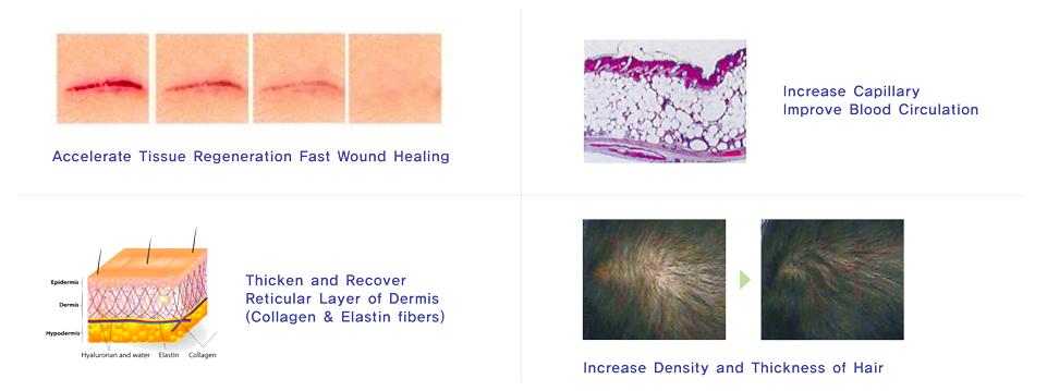 PDRN Skin Rejuvenation