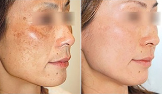 melasma treatment before & after picture