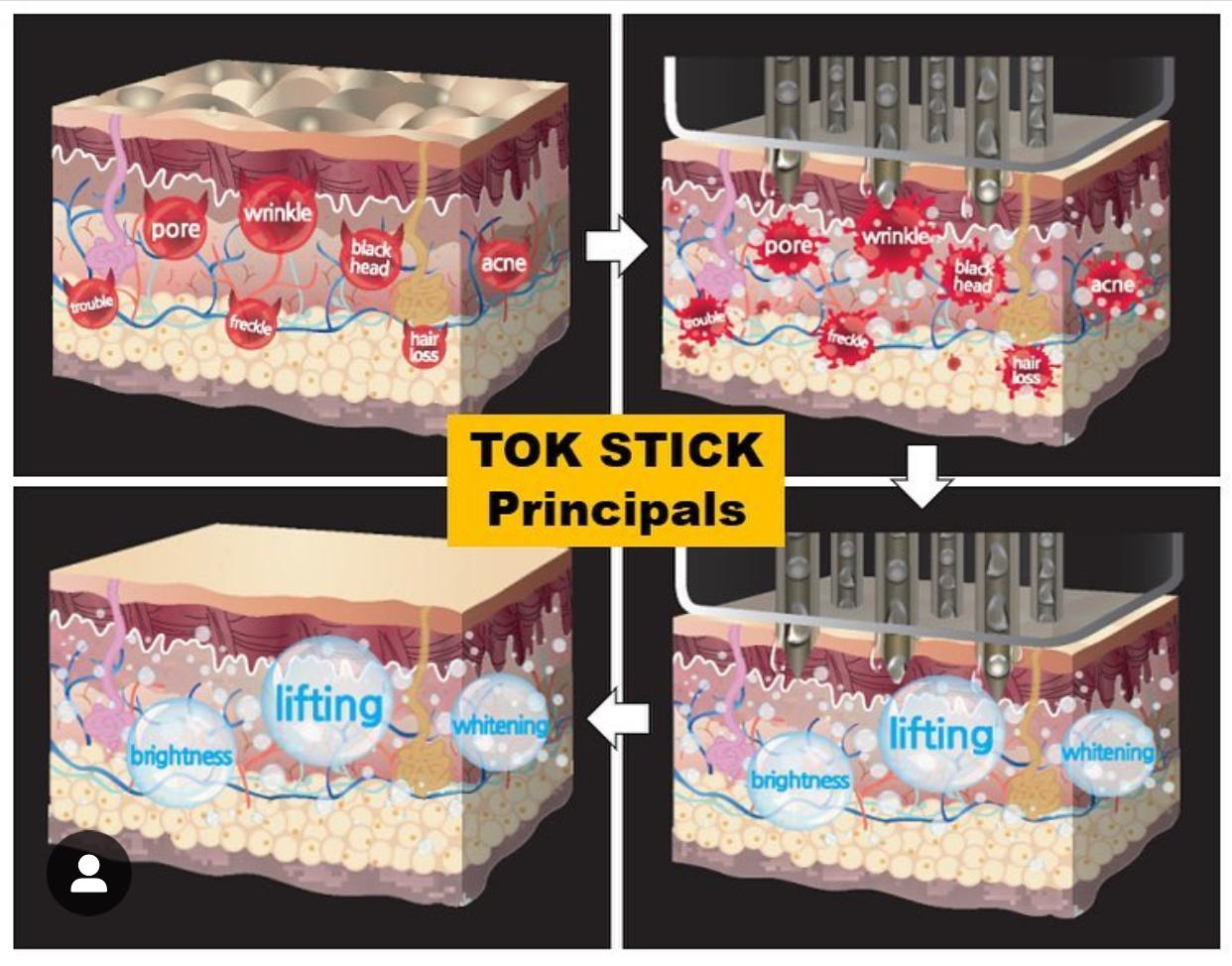 tok stick