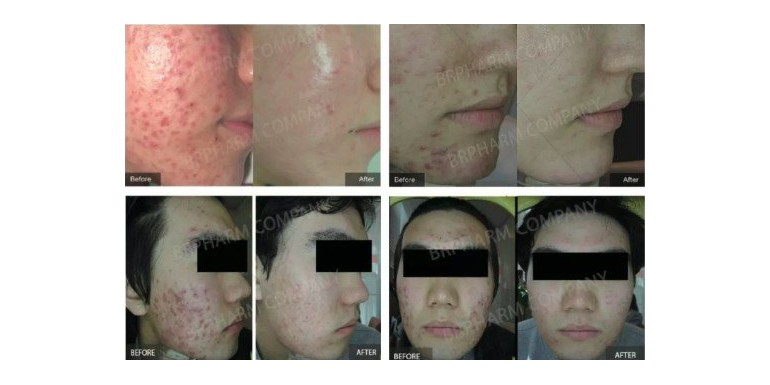 PDT photosensitizer for PDT photodynamic therapy acne treatment